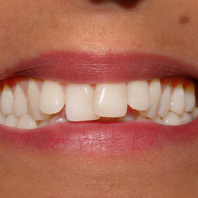 orthodontics before.jpg