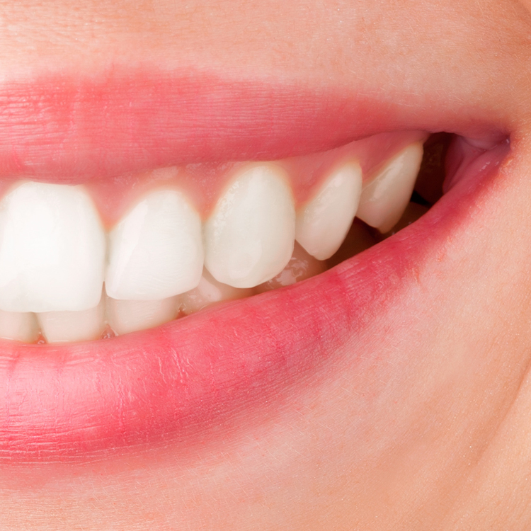 After - After just a few weeks with the whitening tray the teeth are cleaner, whiter and healthier.