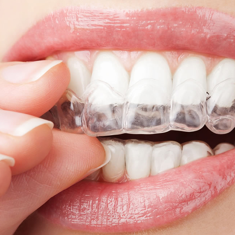 Take home whitening - The teeth whitening tray is custom fit, easy to remove, easy to clean, and can be worn at night.