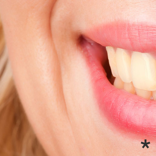 Before - Dark and stained teeth can be a result of dietary and lifestyle habits. If not treated can lead to more serious issues.