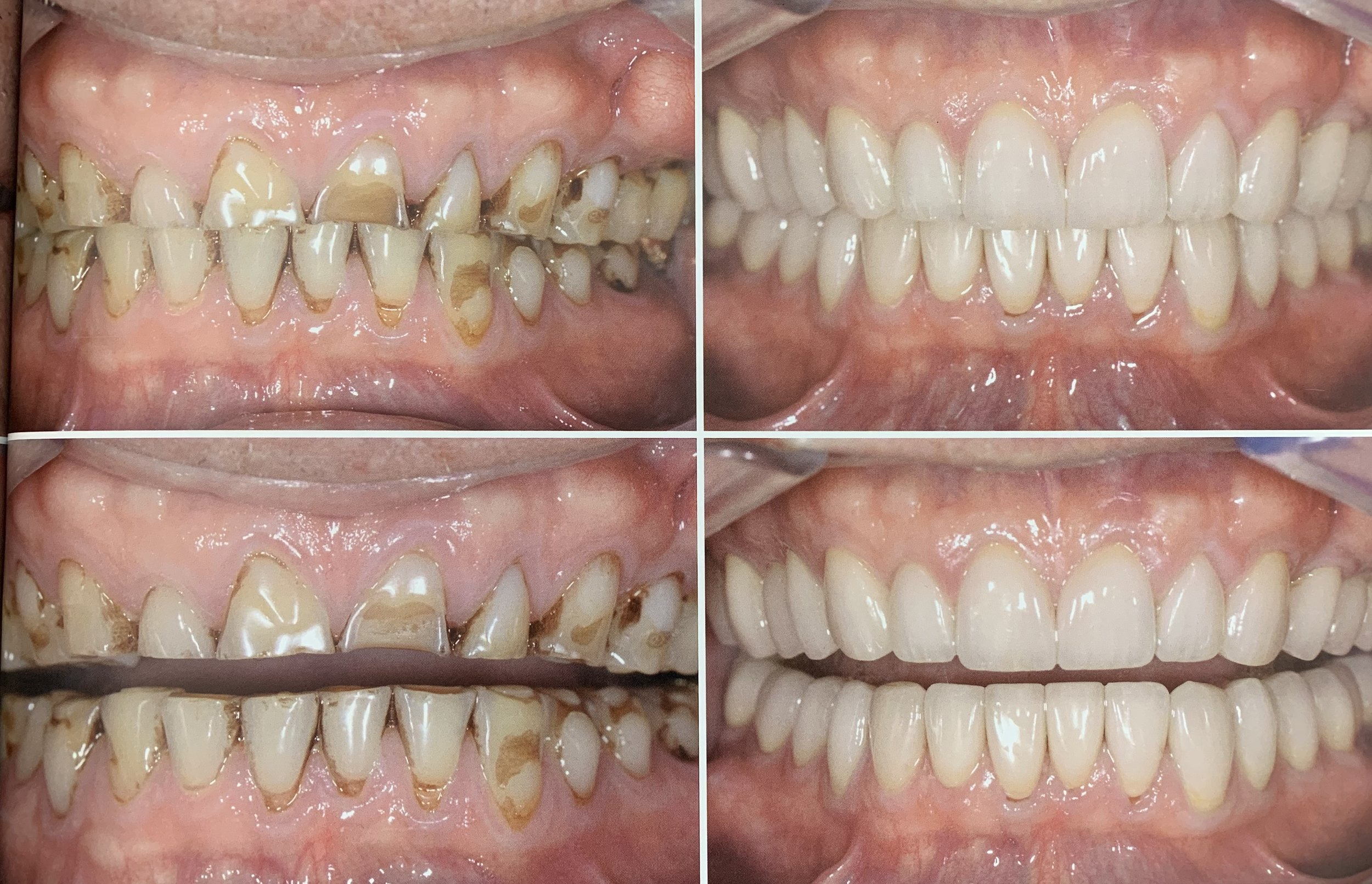 Worn Teeth Repair