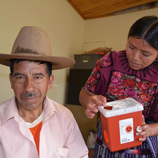 Patients in #guatemala receive #boccinoprotocol to lower #bloodglucose levels #typetwodiabetic #t2d  #clinicaltrial #pilotstudy #auricularacupuncture #diabetes #diabetestype2 #bgl #öronakupunktur #earacupuncture #akupunktur #nadaprotocol