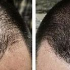 Micro Scalp Pigmentation to cover hair loss