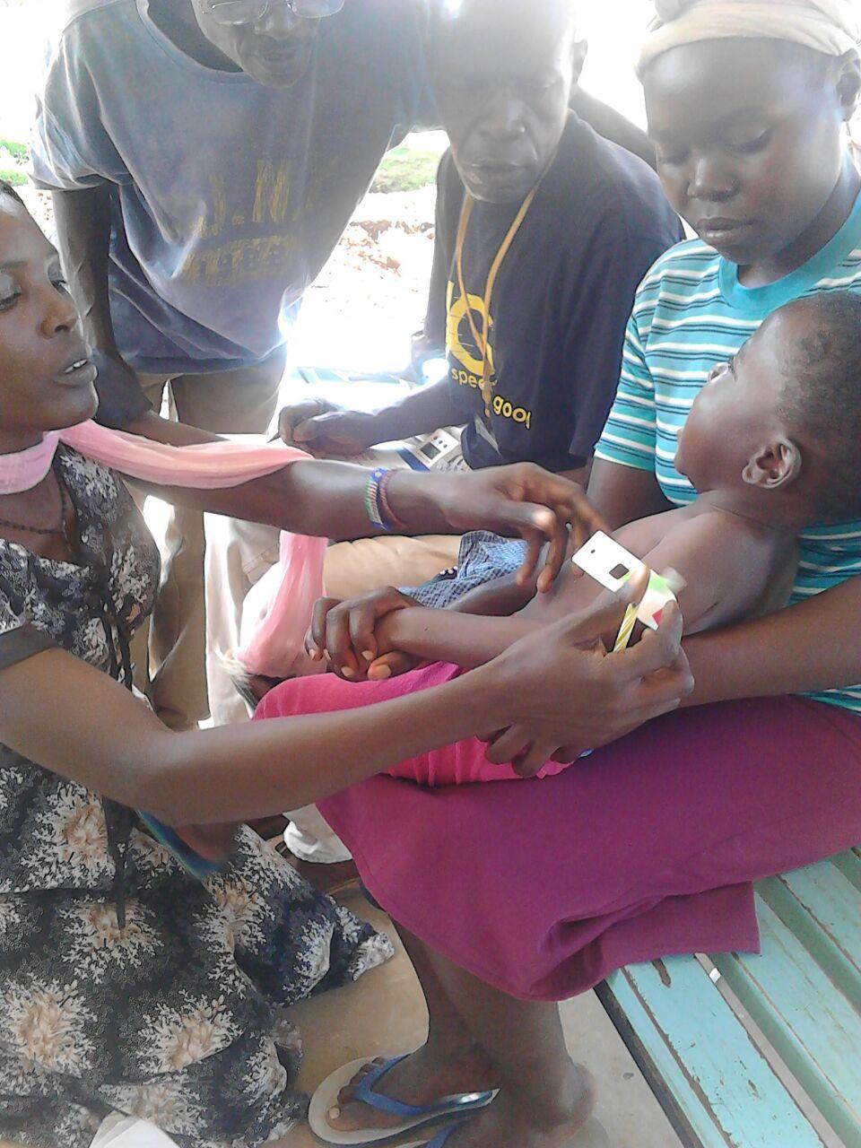 Malnutrition assessment.