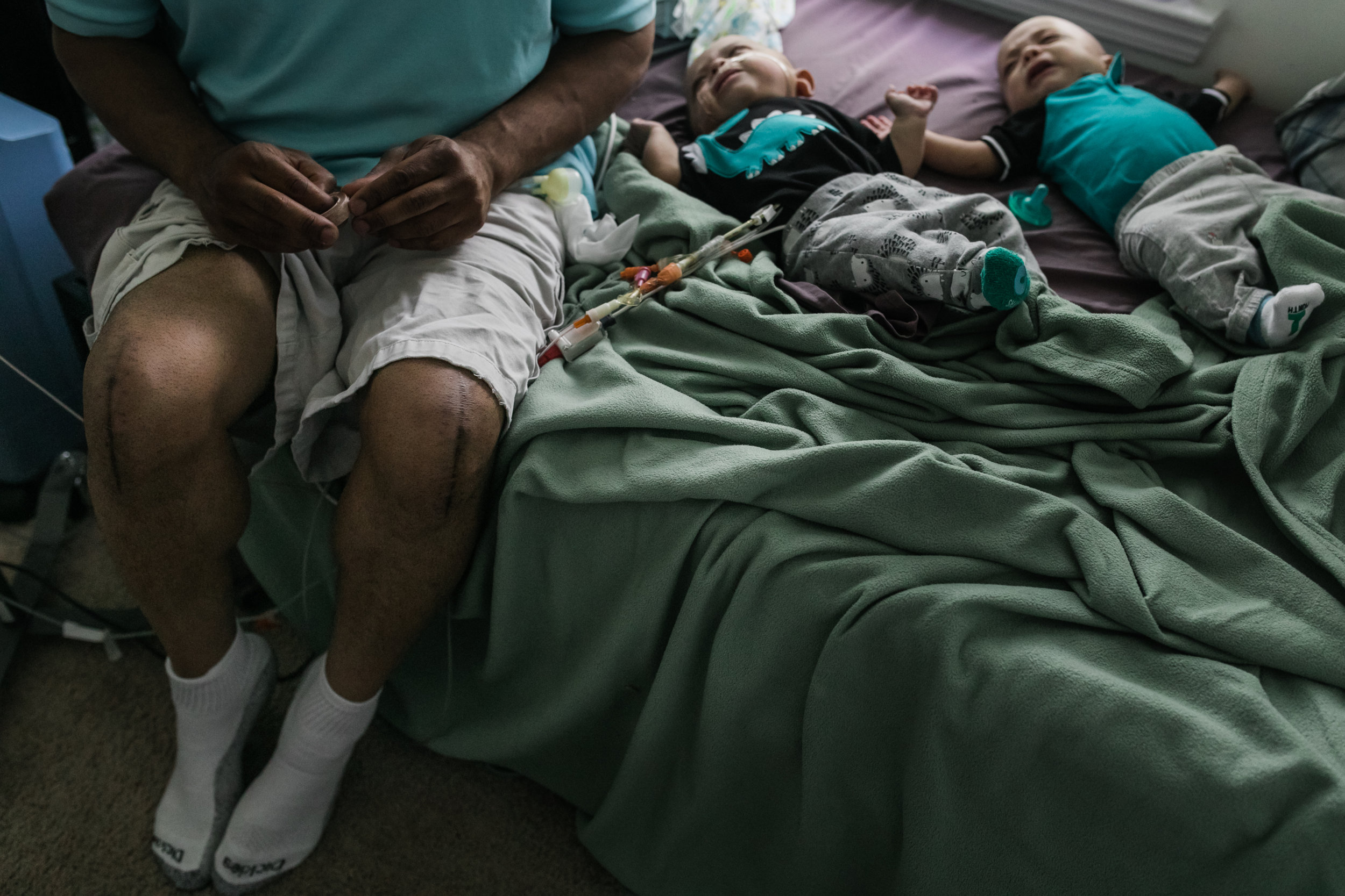 a man with scars on his knees sits on a bed near his twin boys