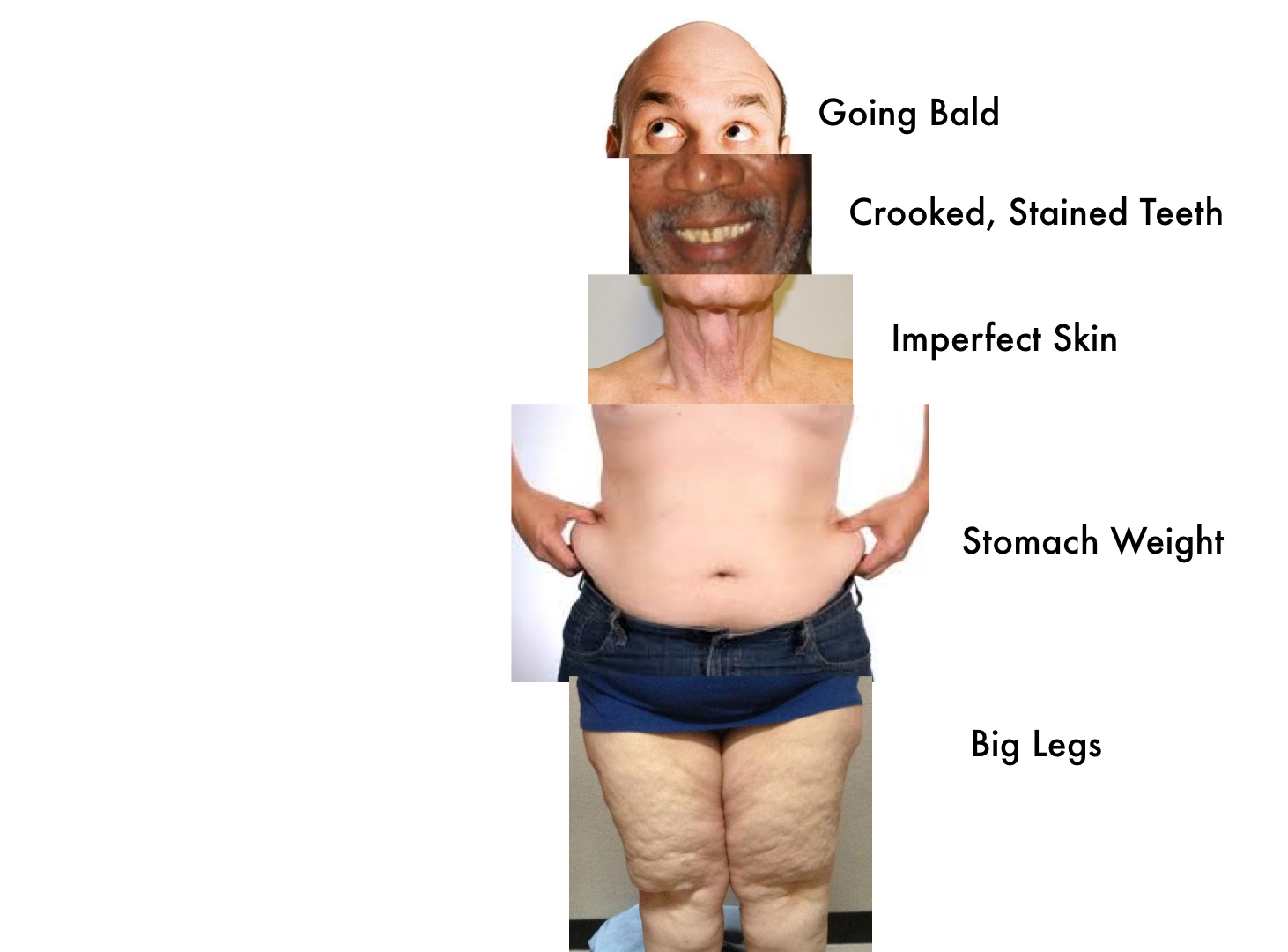 The Components of Self-Hate - A look at our most loathed body parts.