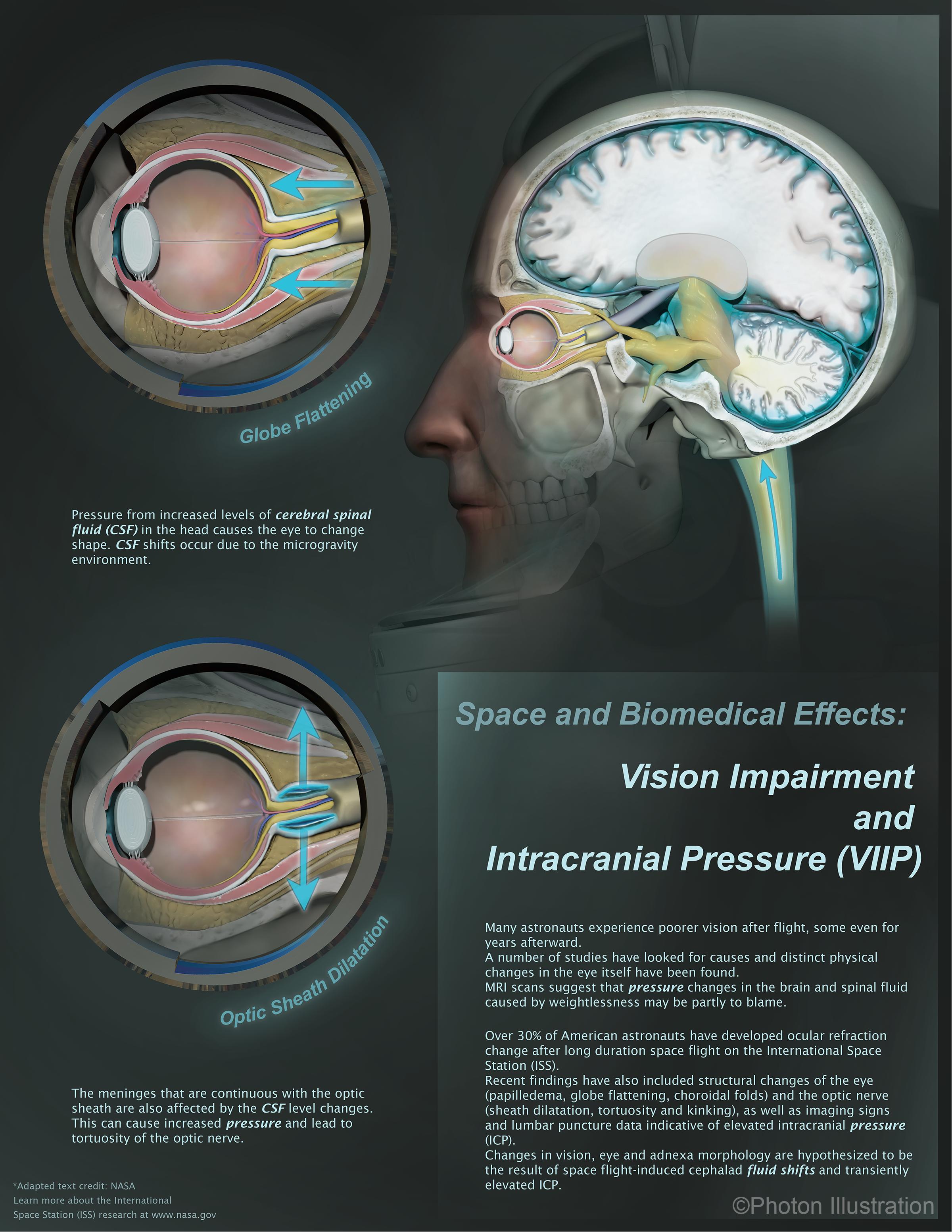 Vision Impairment and Intracranial Pressure
