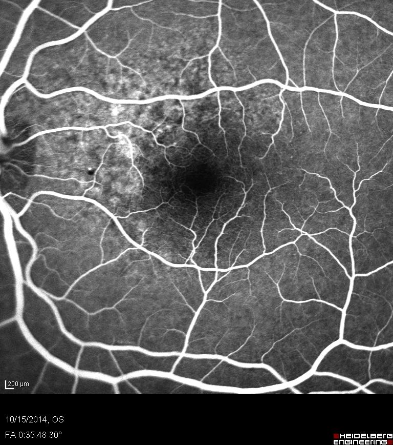 FA arteriovenous phase.jpg