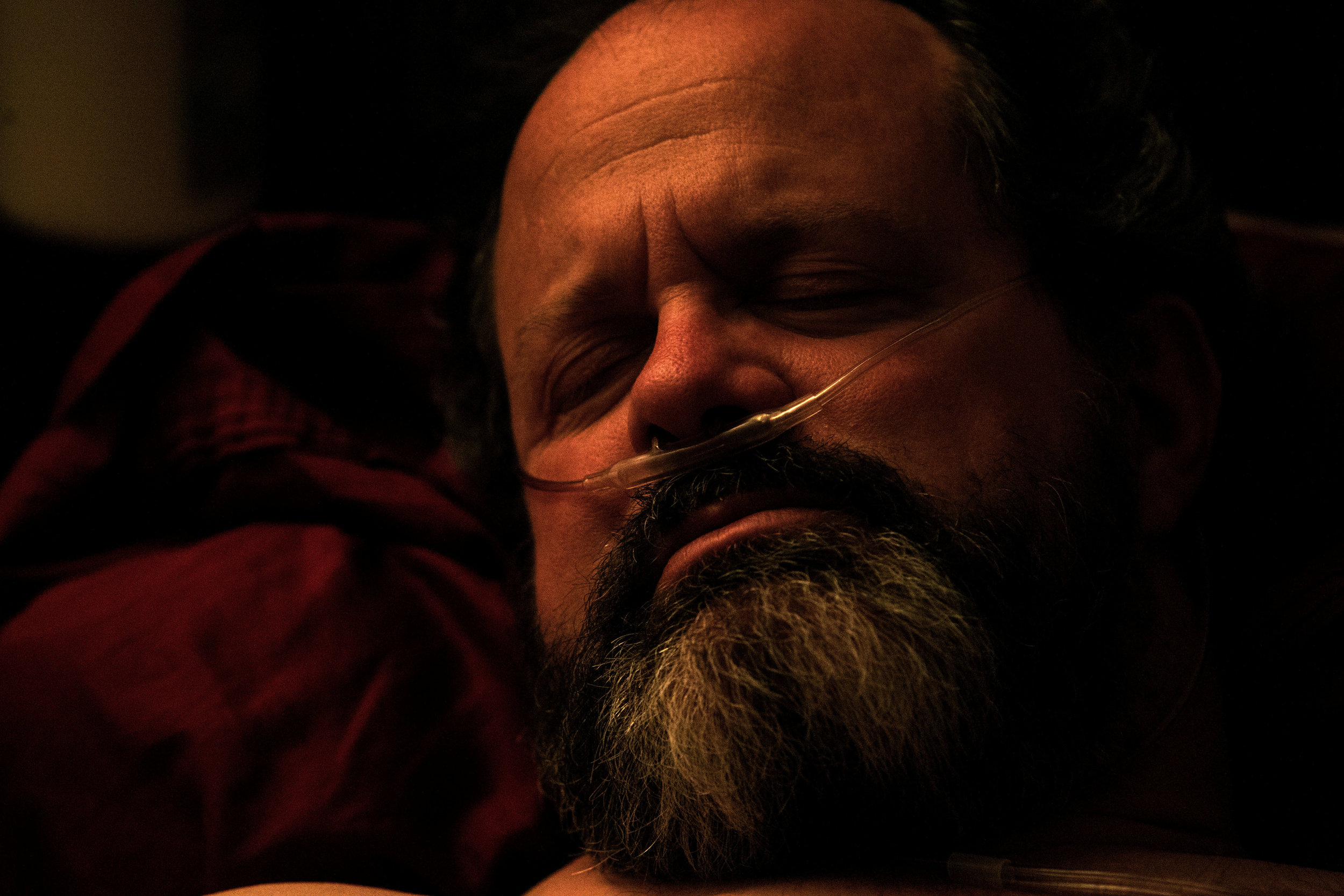 Kevin Pettit, 50, rests his eyes as he lays in his bed in Boulder, Colorado, on April 10, 2018. Pettit sleeps with a breathing machine every night because after the car accident his airways were disrupted and he got sleep apnea.