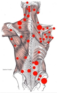 Trigger Points can develop anywhere in the body...