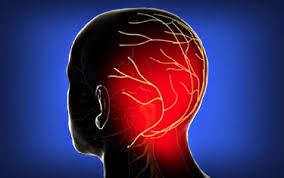 occipital neuralgia.jpg