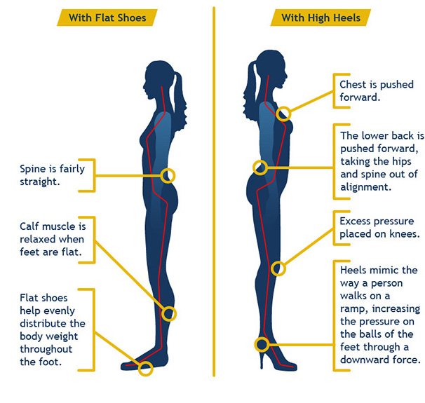 High-Heels-Effects-On-Spine-Body-Hips-and-Knees.jpg