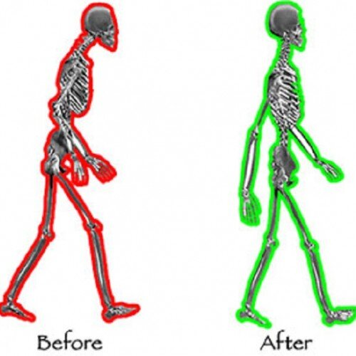 Align-before-and-after1-.jpg