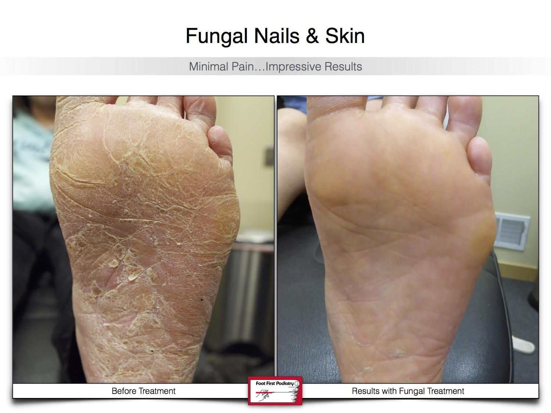 Fungal Nails & Skin 02.16 18.jpg