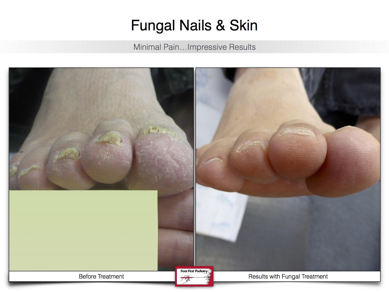 Fungal Nails & Skin 02.16 22.jpg