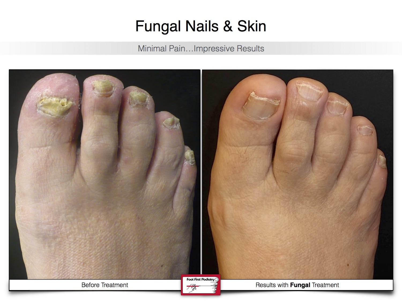 Fungal Nails & Skin 02.16 23.jpg