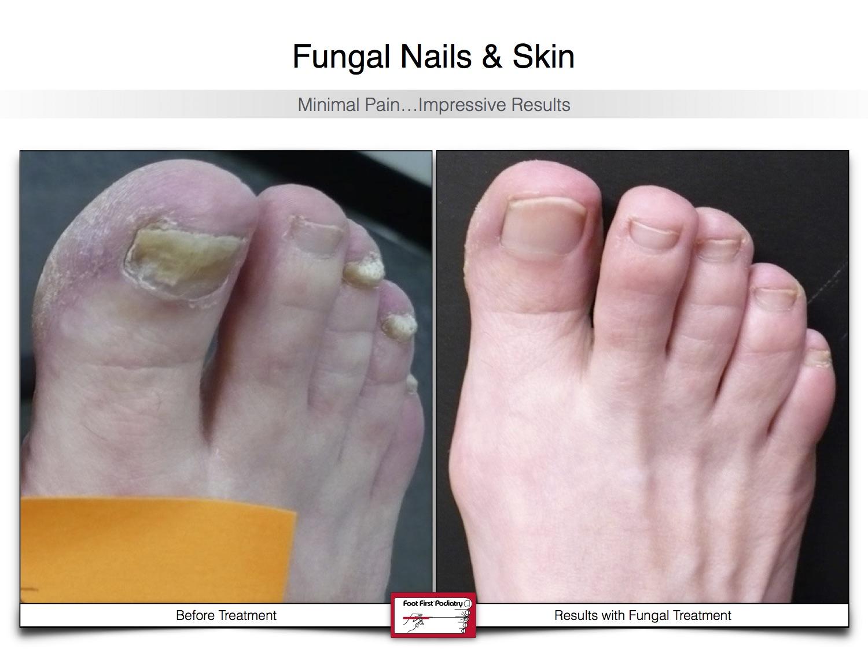 Fungal Nails & Skin 02.16 19.jpg