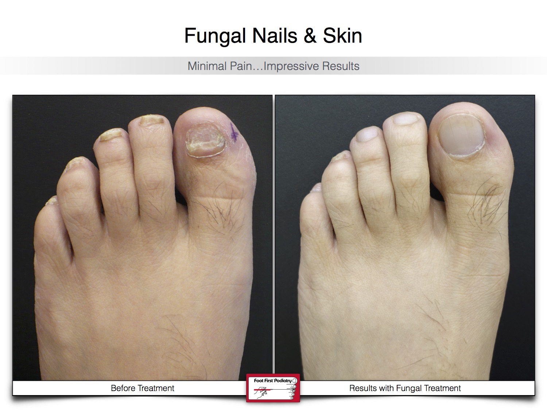 Fungal Nails & Skin 02.16 24.jpg