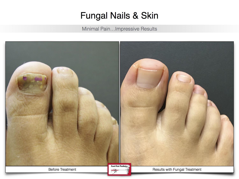 Fungal Nails & Skin 02.16 25.jpg