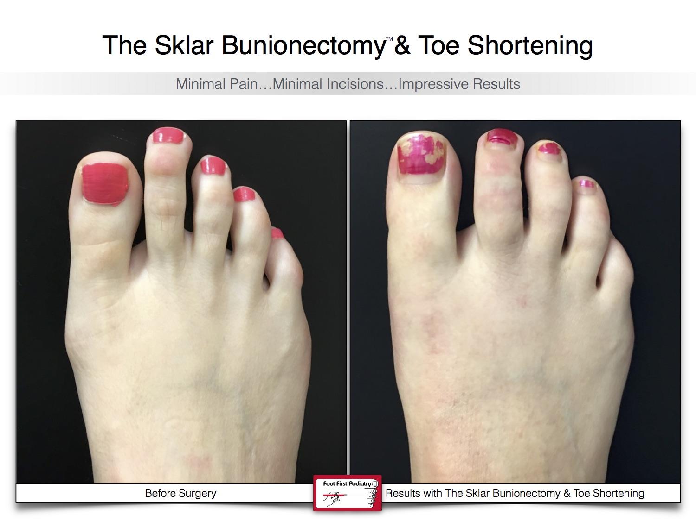 Sklar Bunionectomy & Toe Shortening 15 | Website 02.17 .jpg