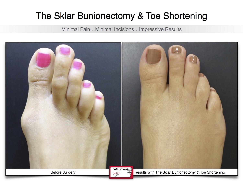 Sklar Bunionectomy & Toe Shortening 18 | Website 02.17 .jpg