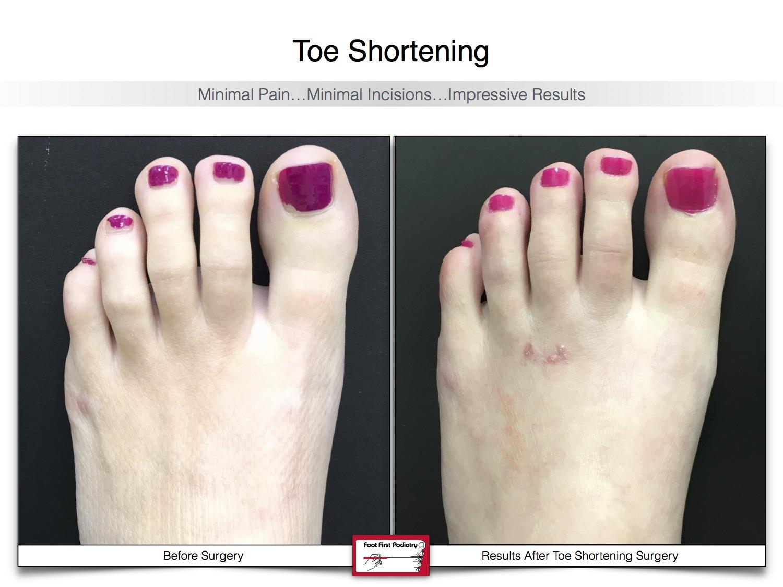Toe Shortening 21 | Website 02.17 .jpg