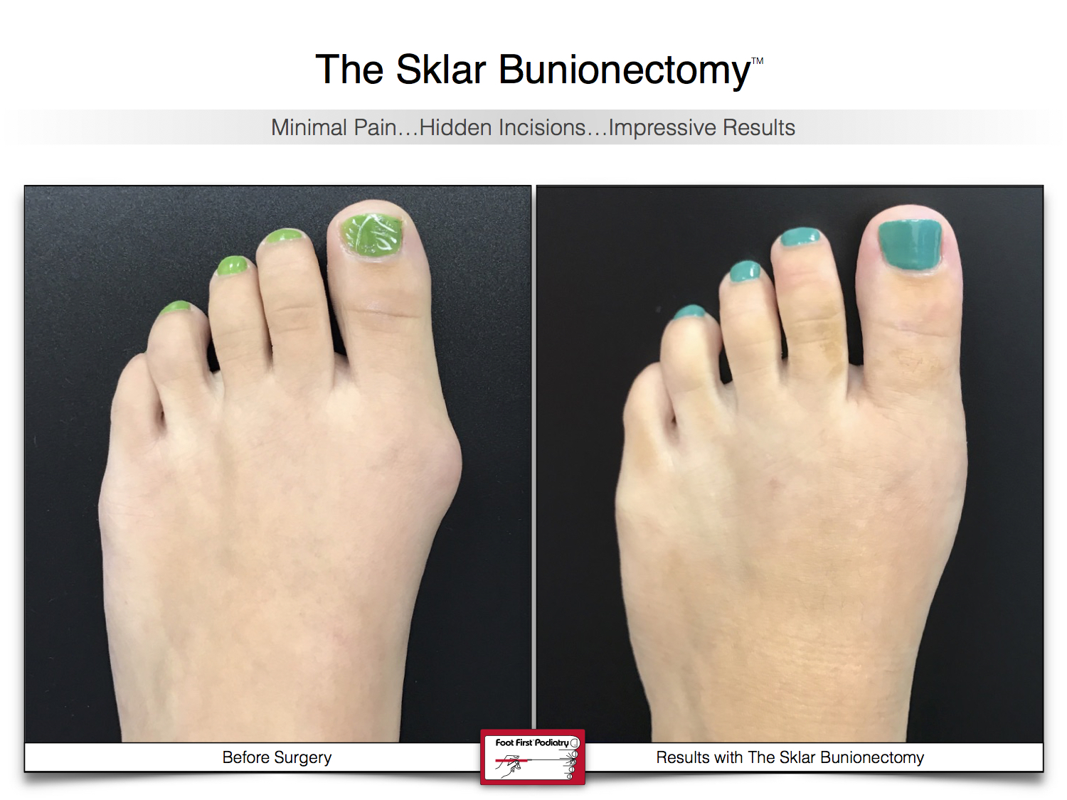 Results You Want to See   Sklar Bunionectomy 44.jpg