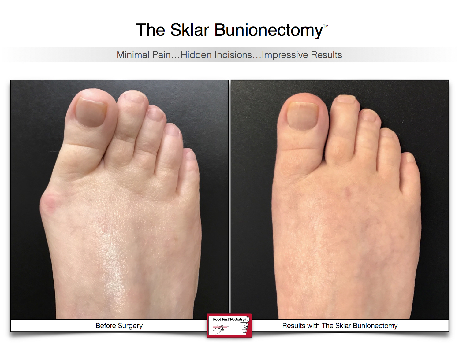 Results You Want to See   Sklar Bunionectomy 45.jpg