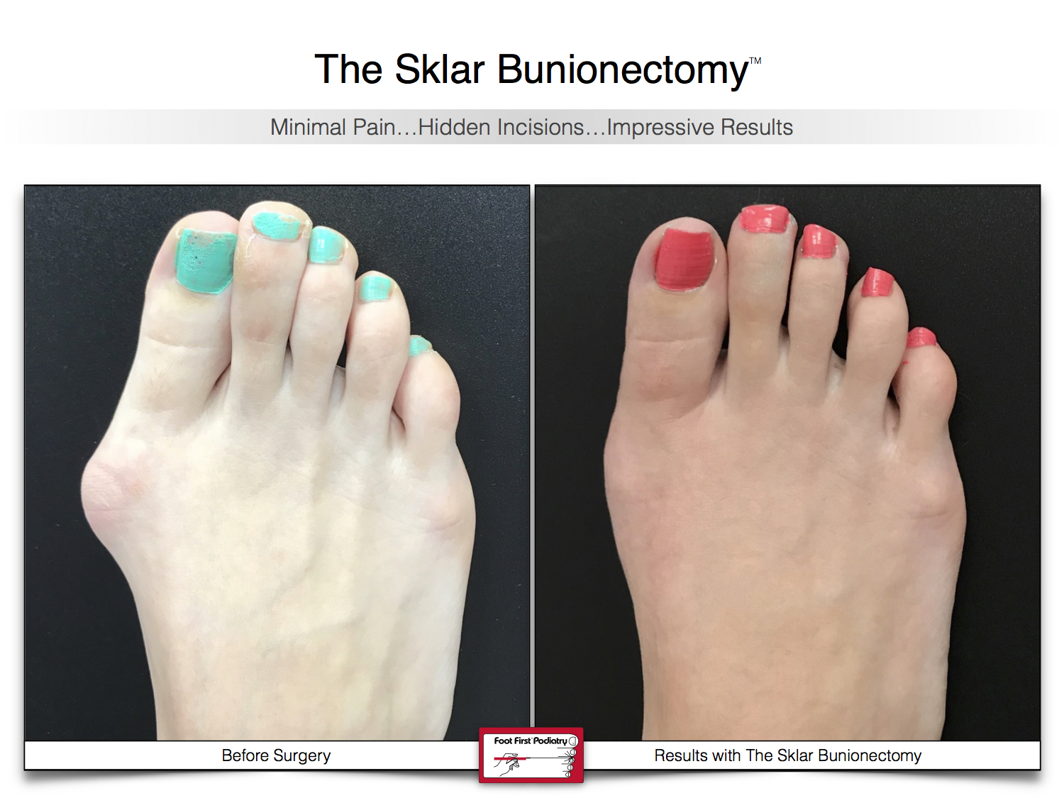 Results You Want to See   Sklar Bunionectomy 43.jpg