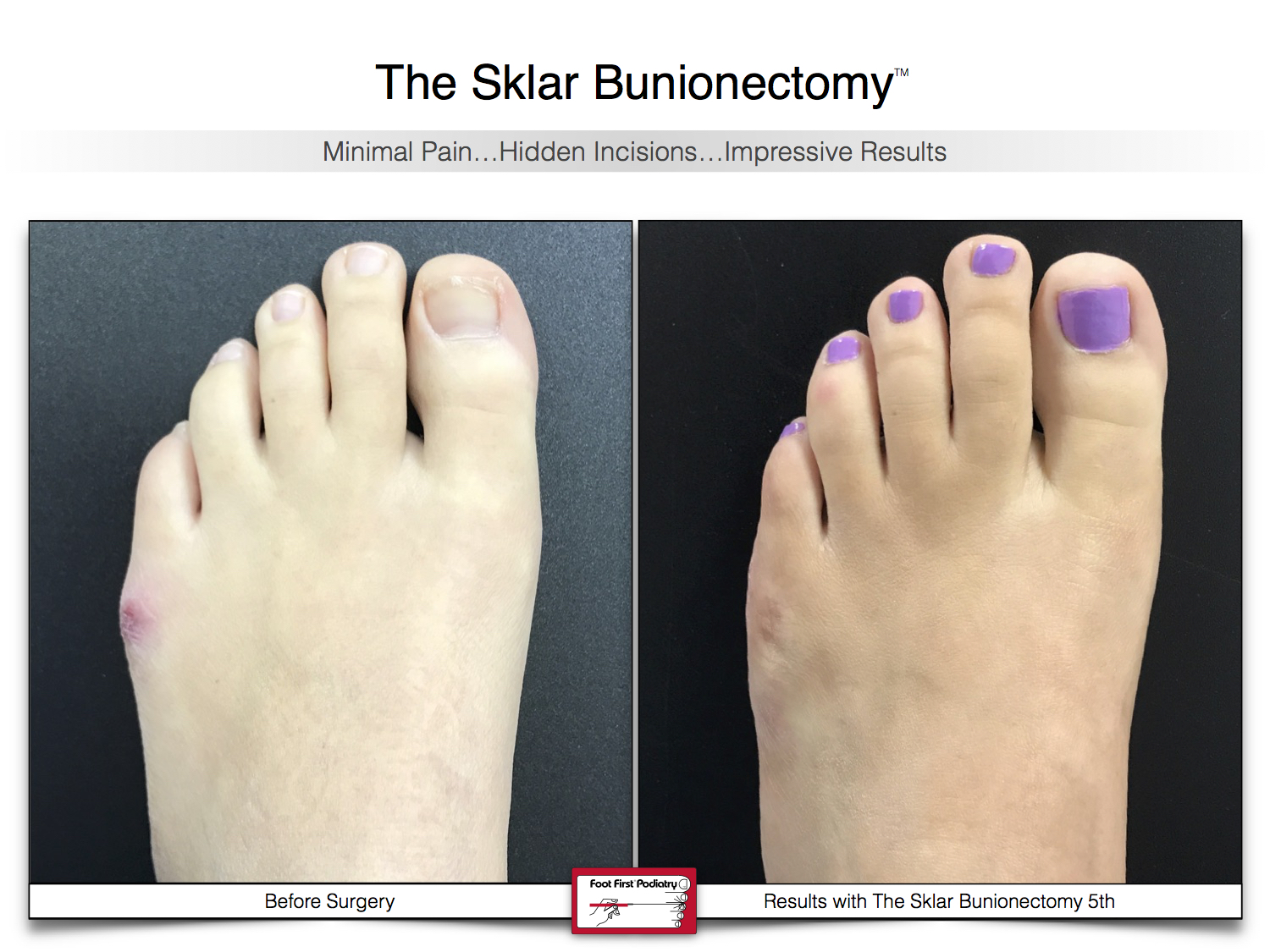 Results You Want to See   Sklar Bunionectomy 42.jpg