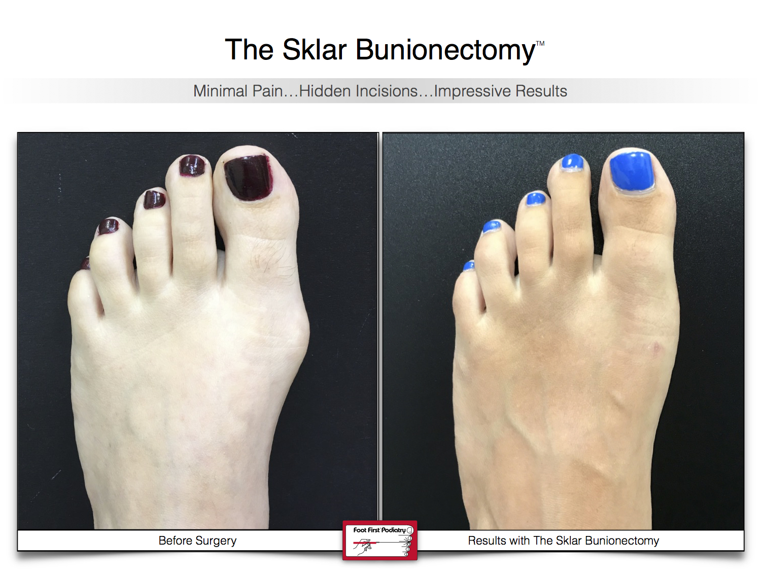 Results You Want to See   Sklar Bunionectomy 40.jpg