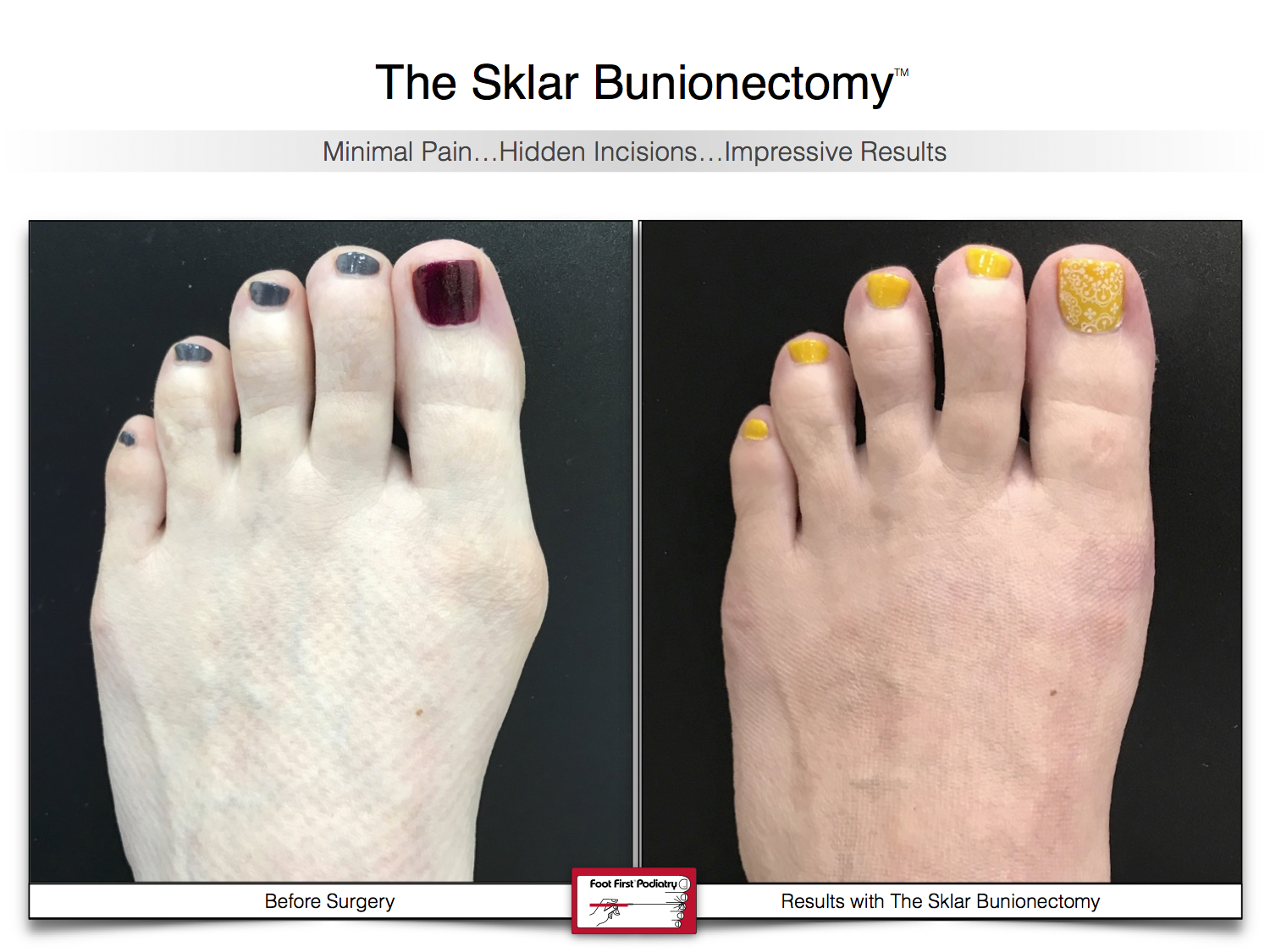 Results You Want to See   Sklar Bunionectomy 41.jpg