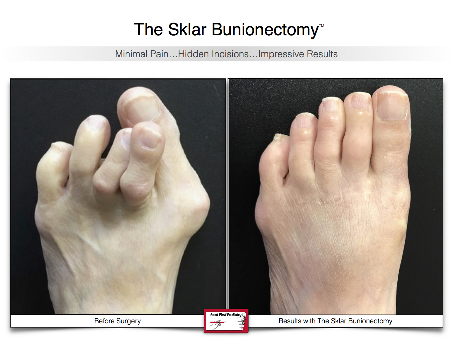 Results You Want to See   Sklar Bunionectomy  38.jpg