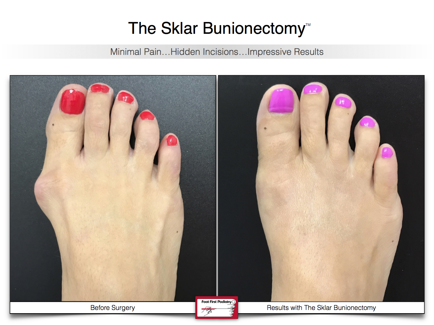 Results You Want to See   Sklar Bunionectomy 39.jpg