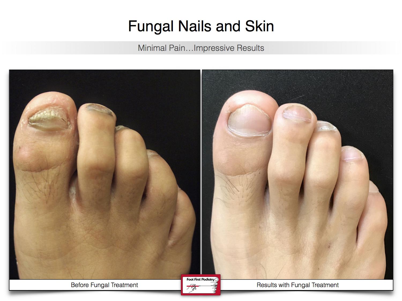 Results You Want to See   Results You Want to See   www.footfirst.com 50.jpg