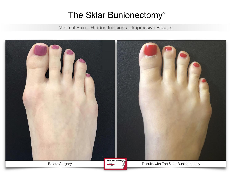 The Sklar Bunionectomy 5   www.footfirst.com .jpg