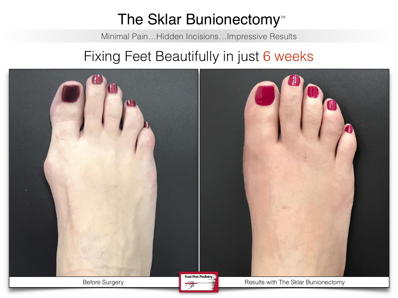 The Sklar Bunionectomy - 6 weeks post   www.footfirst.com .jpg