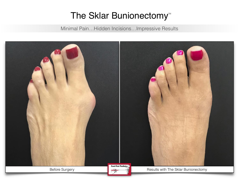 The Sklar Bunionectomy 1   www.footfirst.com .jpg