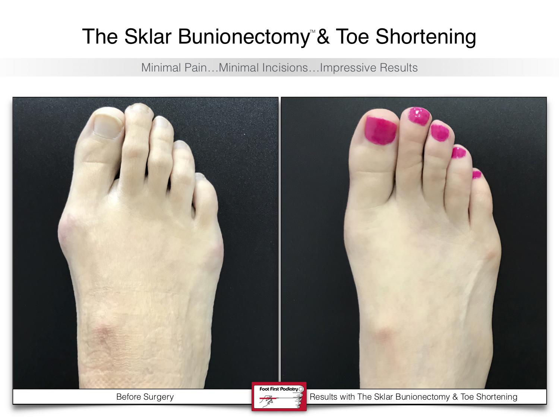 The Sklar Bunionectomy 7 | www.footfirst.com.jpg