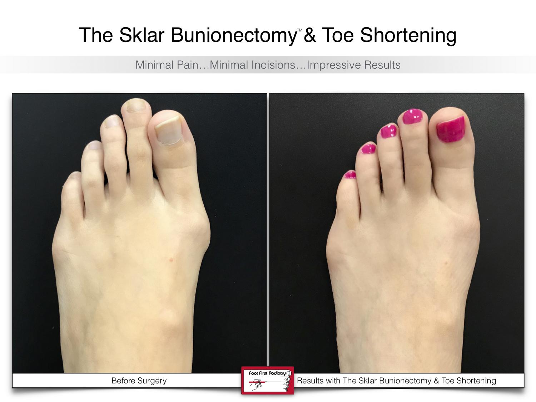 The Sklar Bunionectomy 6 | www.footfirst.com .jpg