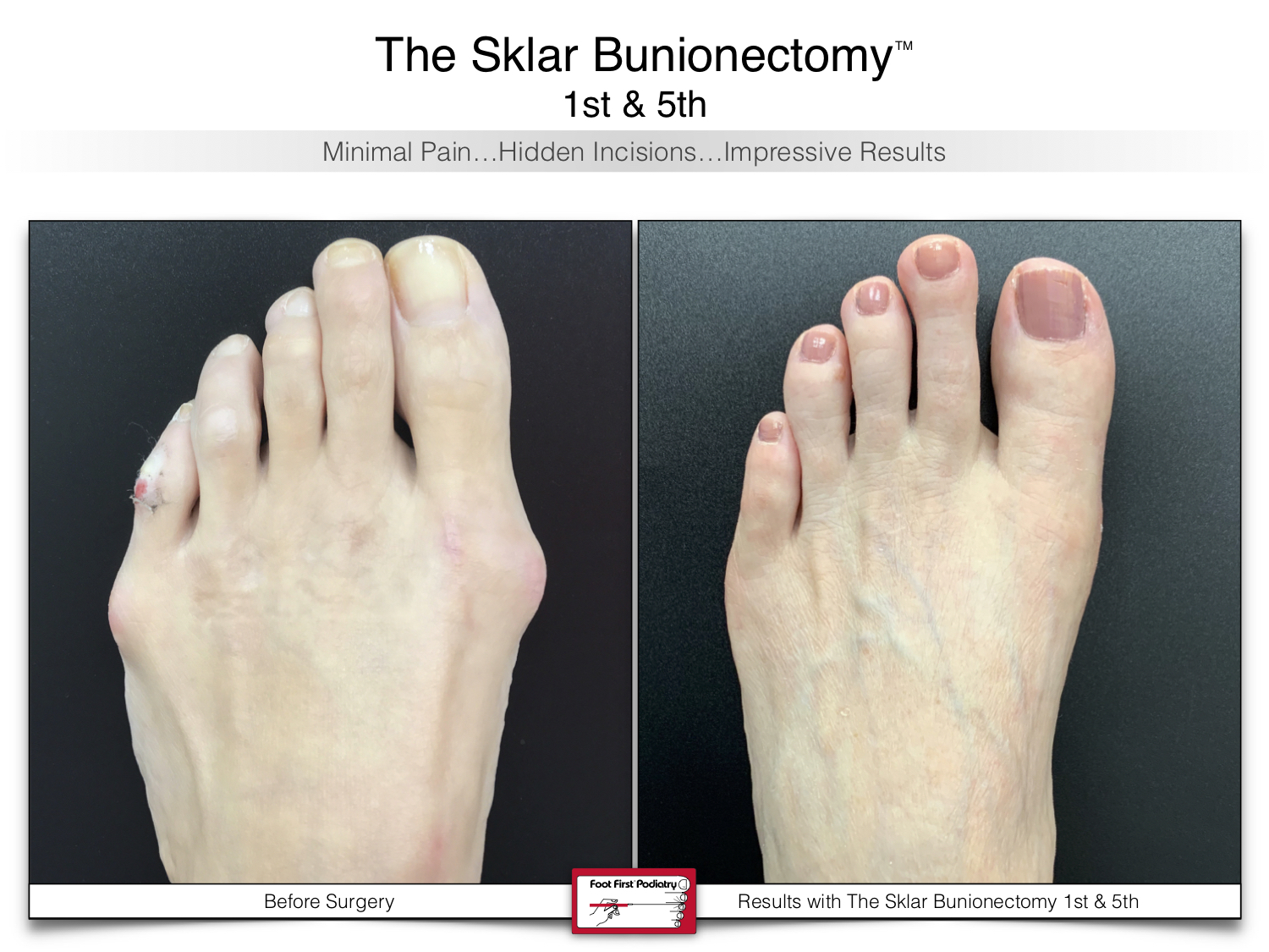 www.footfirst.com | Cosmetic Bunion and Toe Shortening Surgery 109.jpg
