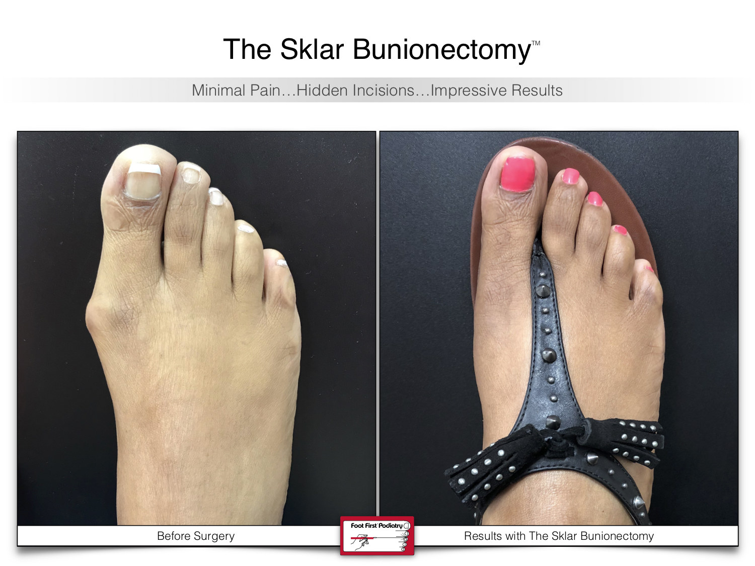 www.footfirst.com | Cosmetic Bunion and:or Toe Shortening Surgery 112.jpg