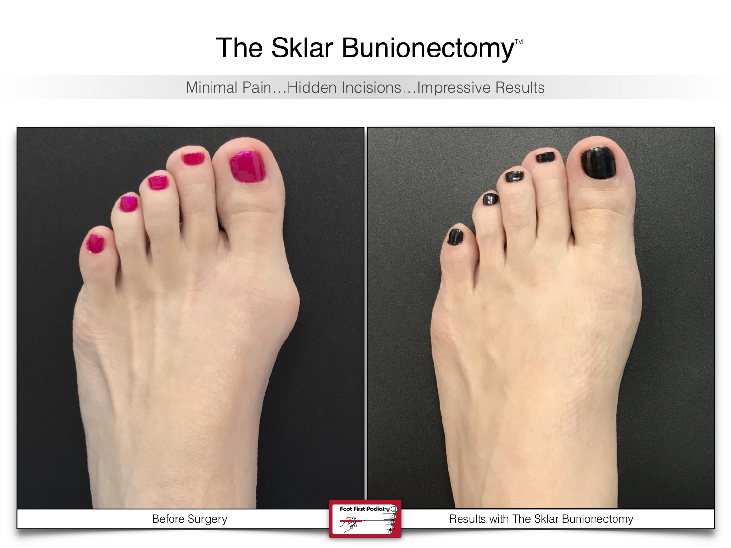 www.footfirst.com | Cosmetic Bunion and Toe Shortening Surgery 115 .jpg