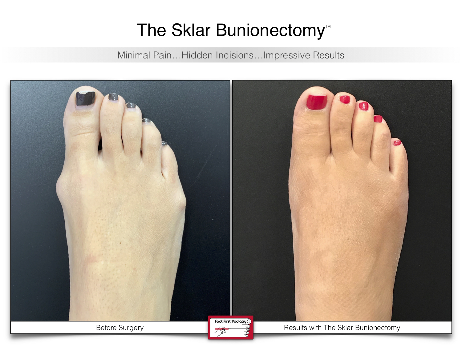 www.footfirst.com | Cosmetic Bunion and Toe Shortening Surgery 114.jpg