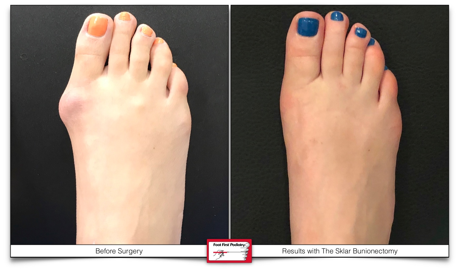 Before & After results with the Sklar Bunionectomy