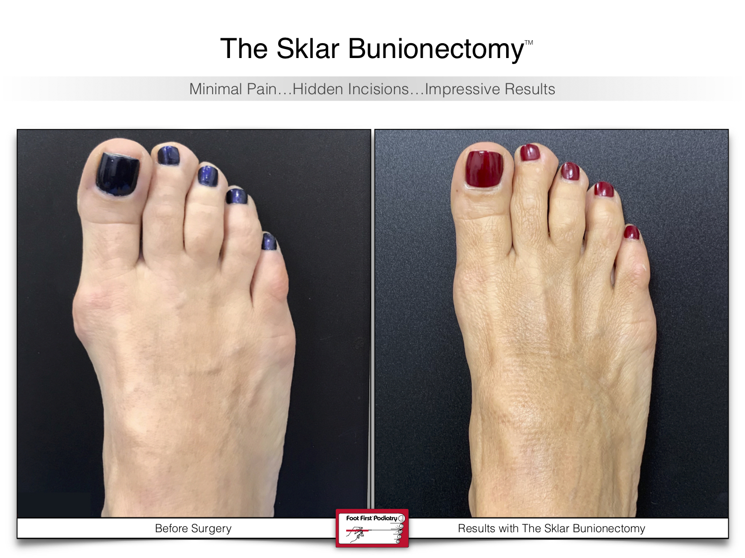 www.footfirst.com | Cosmetic Bunion and Toe Shortening Surgery 118.jpg