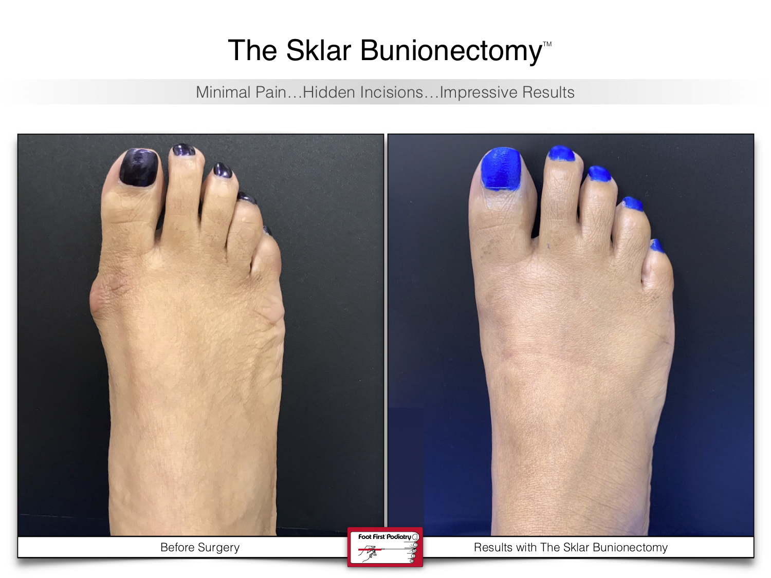 www.footfirst.com | Cosmetic Bunion and Toe Shortening Surgery 116 .jpg
