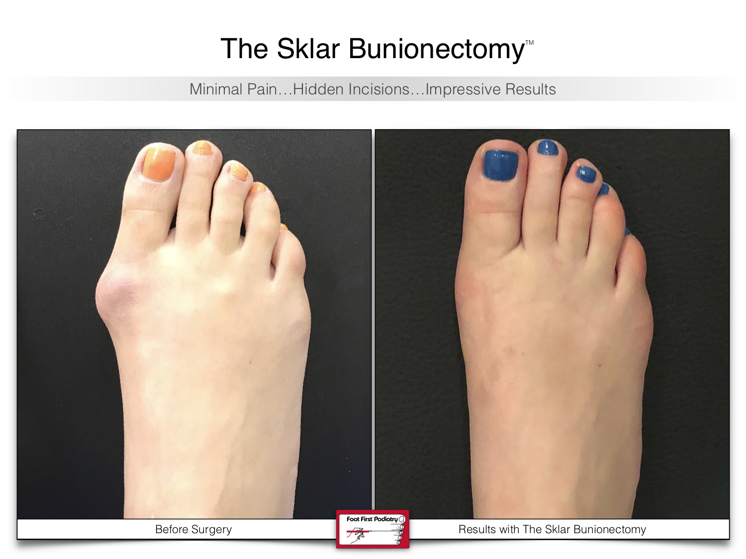 www.footfirst.com | Cosmetic Bunion and Toe Shortening Surgery 113.jpg