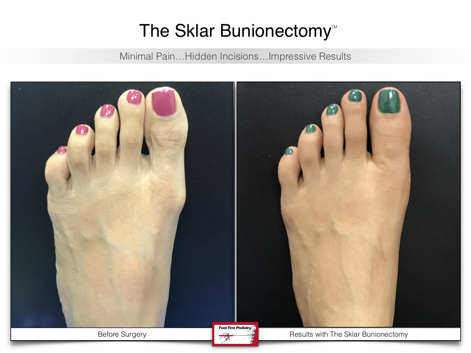 www.footfirst.com | Cosmetic Bunion and Toe Shortening Surgery 117.jpg