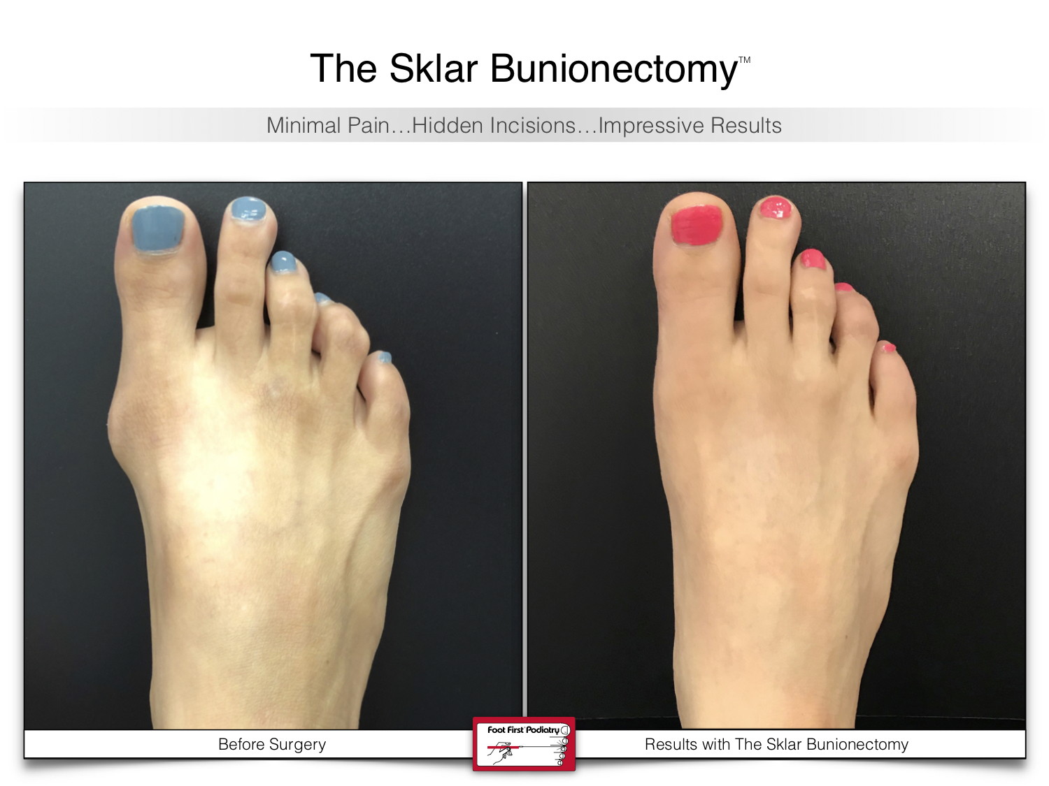 www.footfirst.com | Cosmetic Bunion and Toe Shortening Surgery 119.jpg
